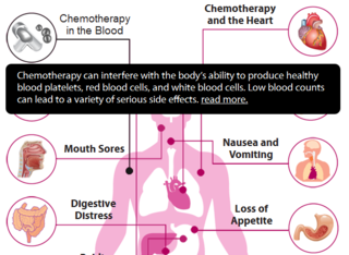 Chemo-side-effects-infographic