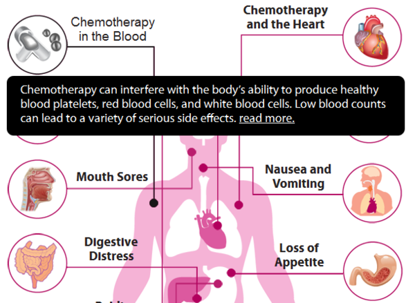 Common side effects of chemotherapy on the body ...